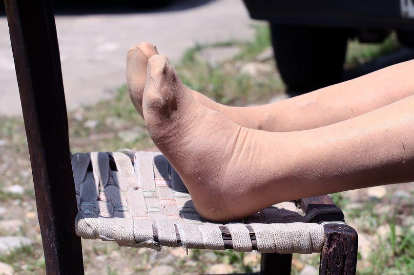 ¿Por qué en verano se nos hinchan más los pies?