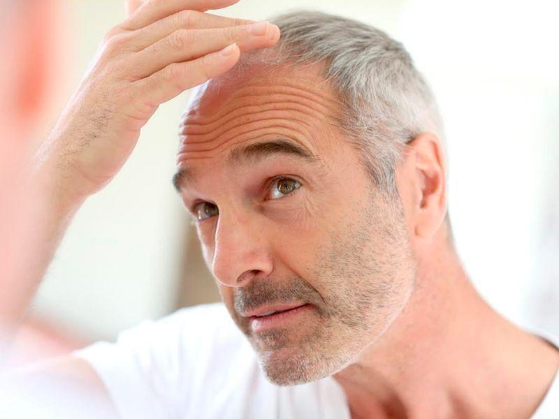 Caída del pelo en otoño: todo lo que tienes que saber para resolver tus dudas
